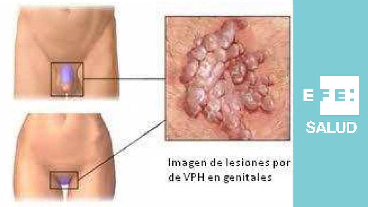 Virus del papiloma en mujeres tratamiento,
