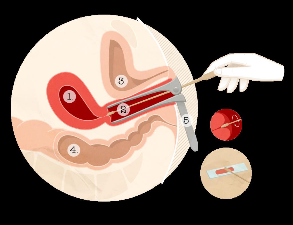 papillomavirus et frottis sentimente de tumoră malignă a unui orb