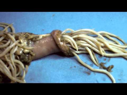 Paraziti u crevima coveka simptomi - csrb.ro