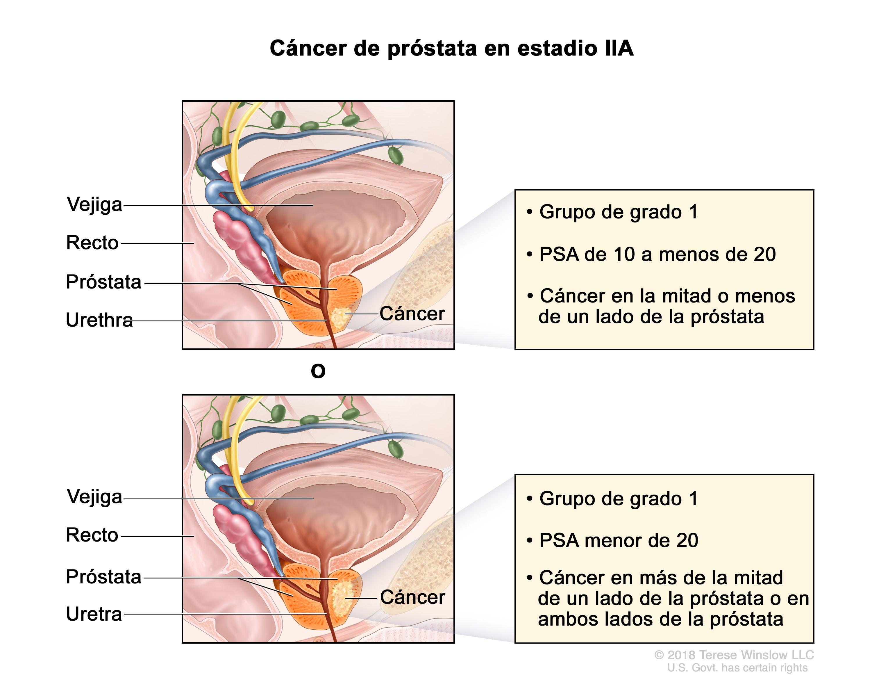 cancer de prostata nivel 6 medicamente pentru condilomul vaginal