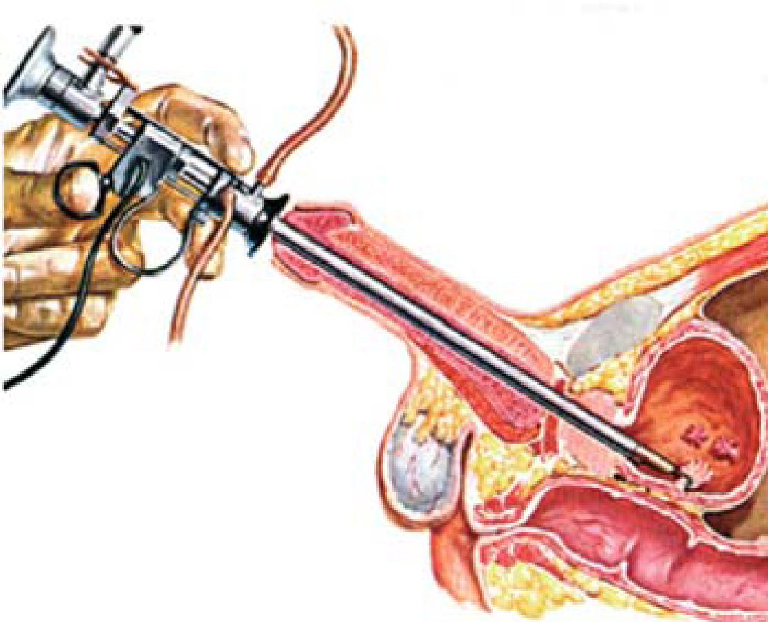 Urină fulgi prostatită, avansată tehnologie de tratament a prostatitei
