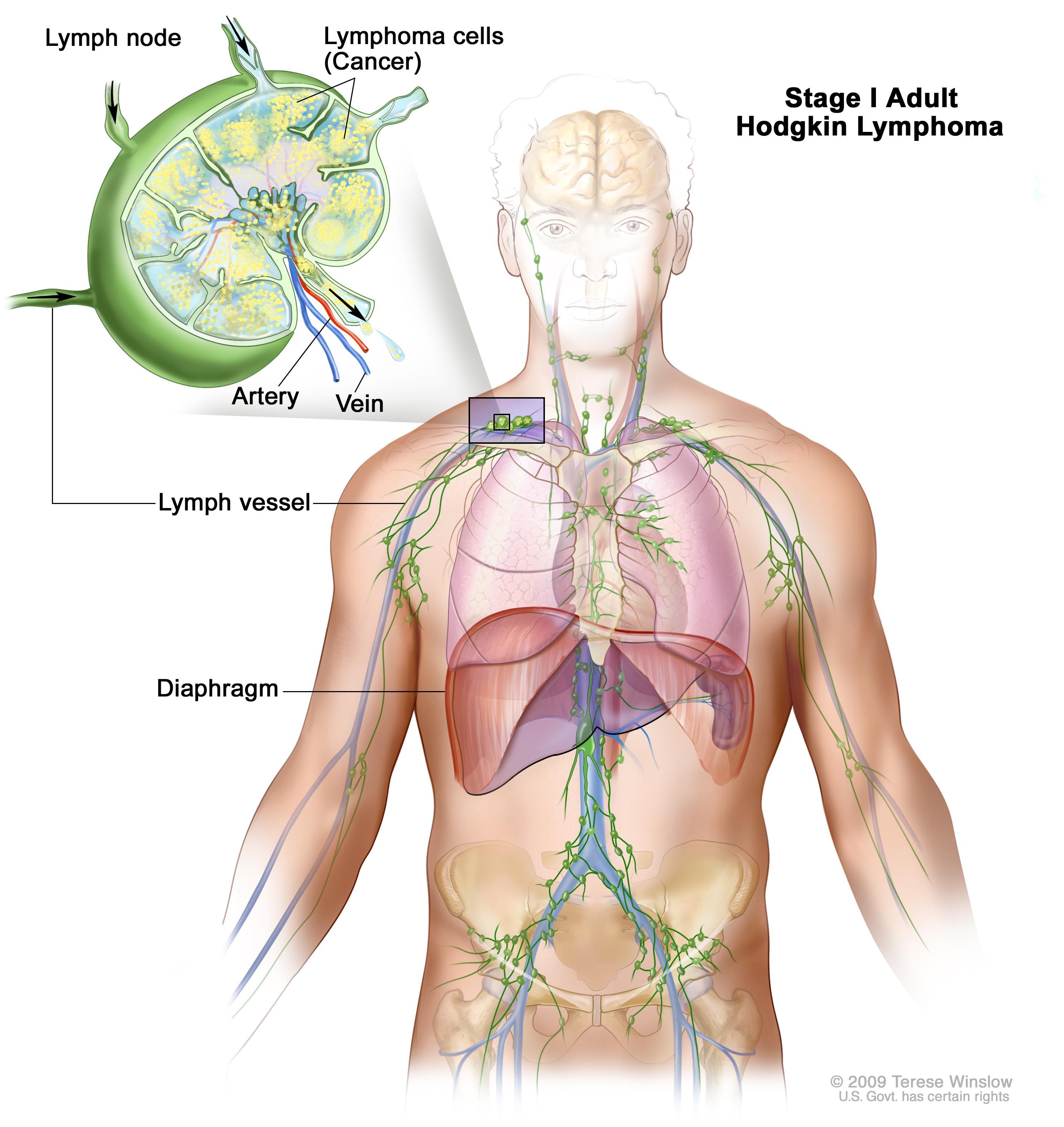 cancer hodgkin stadiu 4 de ce apar papiloame pe ochi