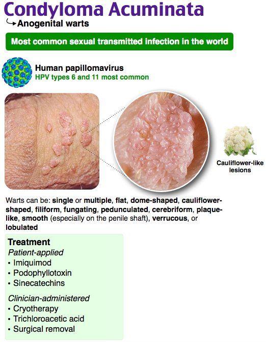 Hpv condyloma acuminatum. Condyloma acuminata genital warts Papiloma humano da cancer
