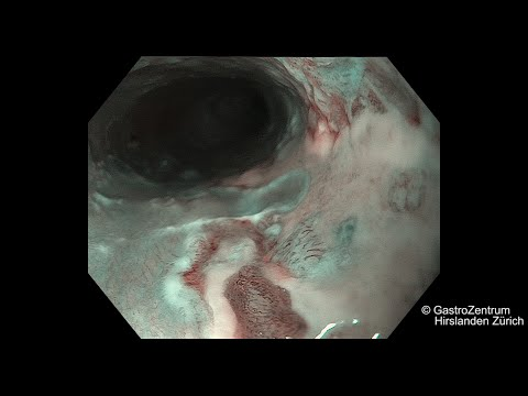 esophageal papilloma icd 10
