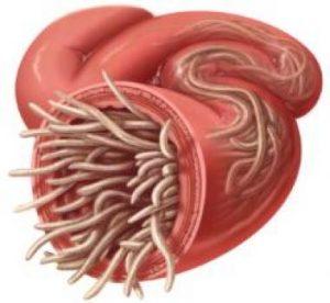 Paraziti u crevima kod ljudi. Paraziti u crevima kod ljudi. Paraziti v tele