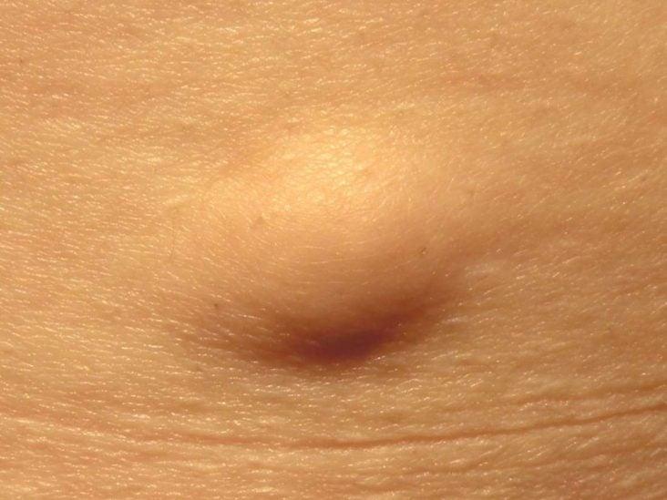 papilloma skin growth