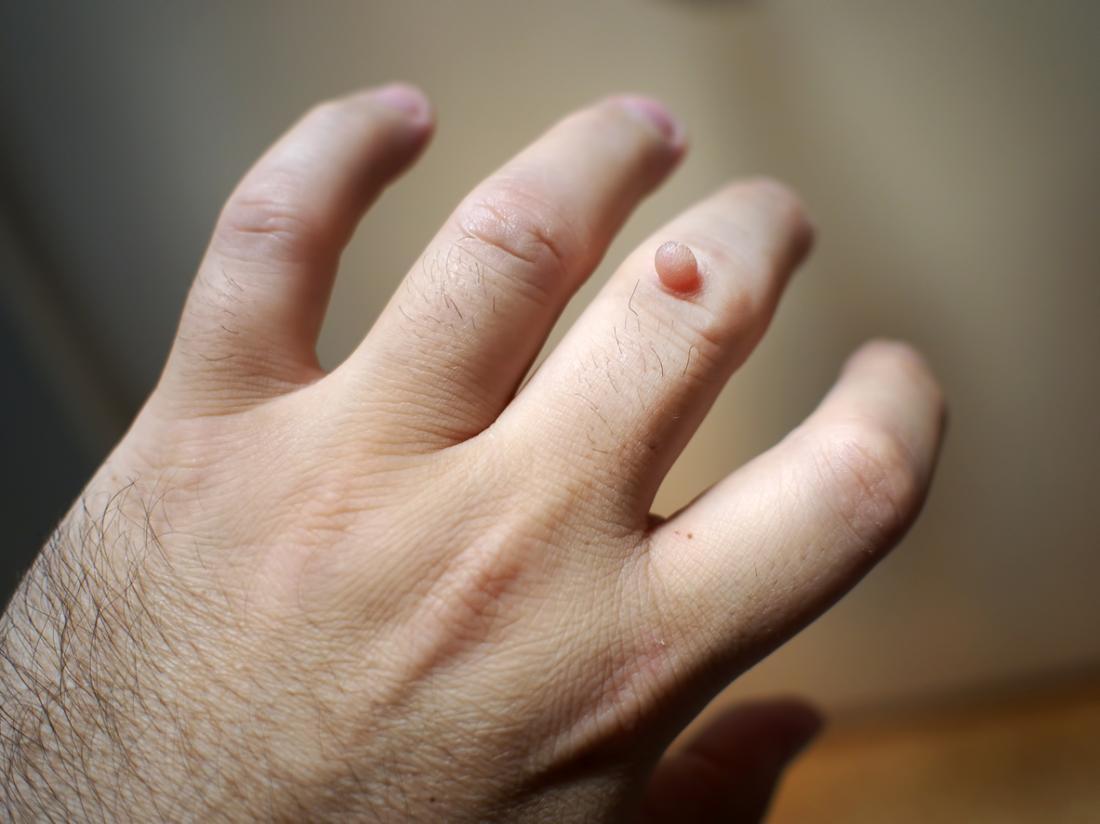 warts on hands pregnancy negi la rădăcina limbii