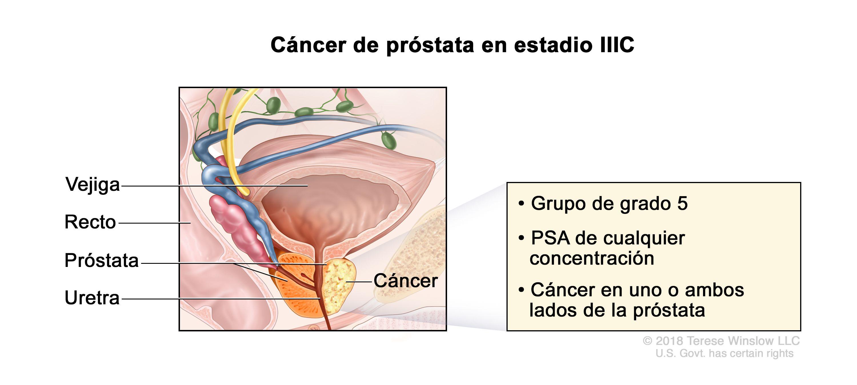 RMN multiparametric si scorul PI-RADS - diagnosticul precis al cancerului de prostata