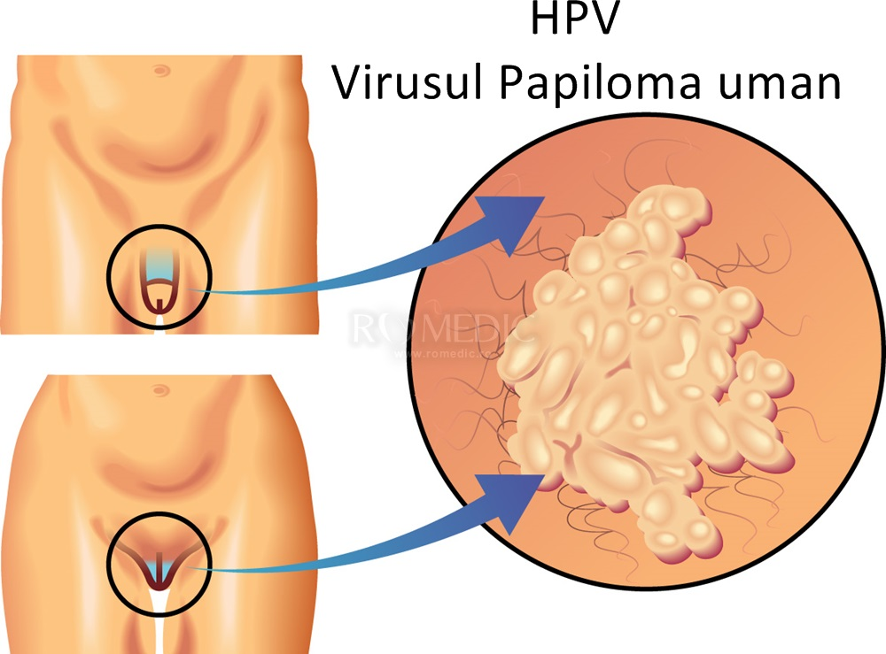 semne de papilomavirus uman