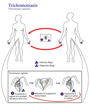 trichomoniasis condilom paraziți stringenti