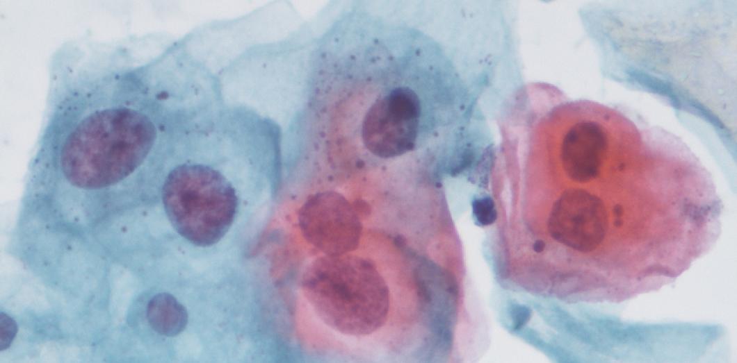 mâncărimi după tratarea viermilor cancer stadiul 4 speranta de viata