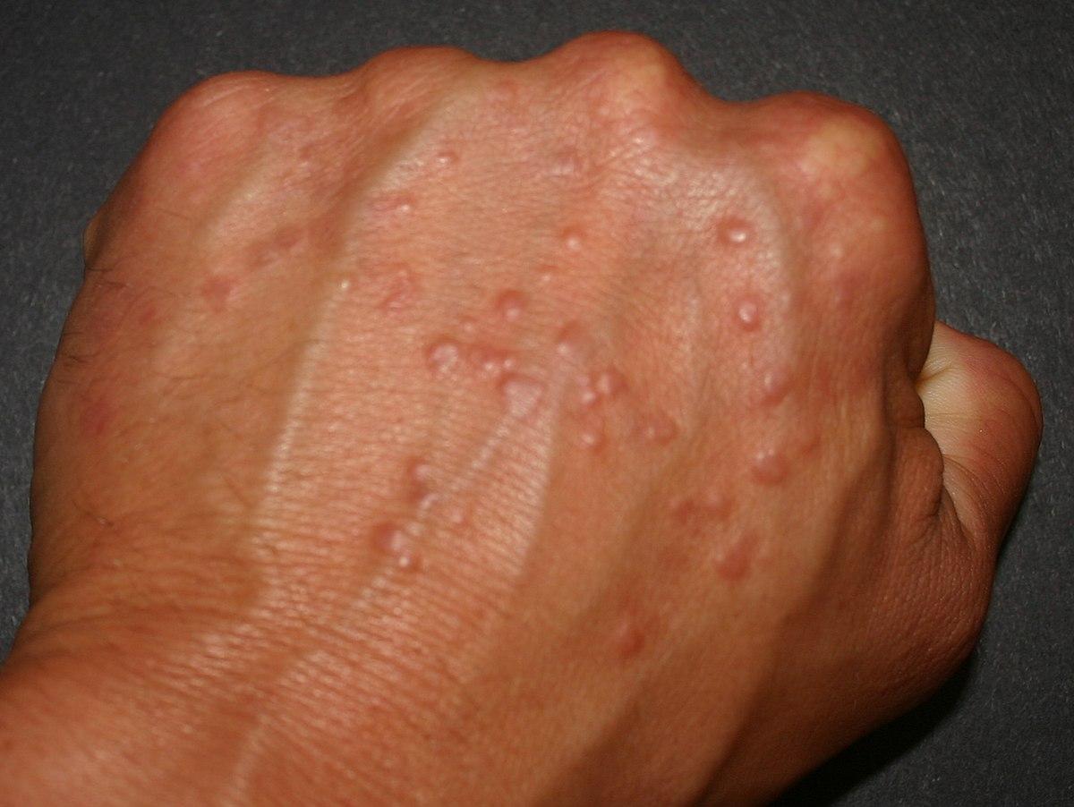 ductal papilloma histopathology papilloma lesion