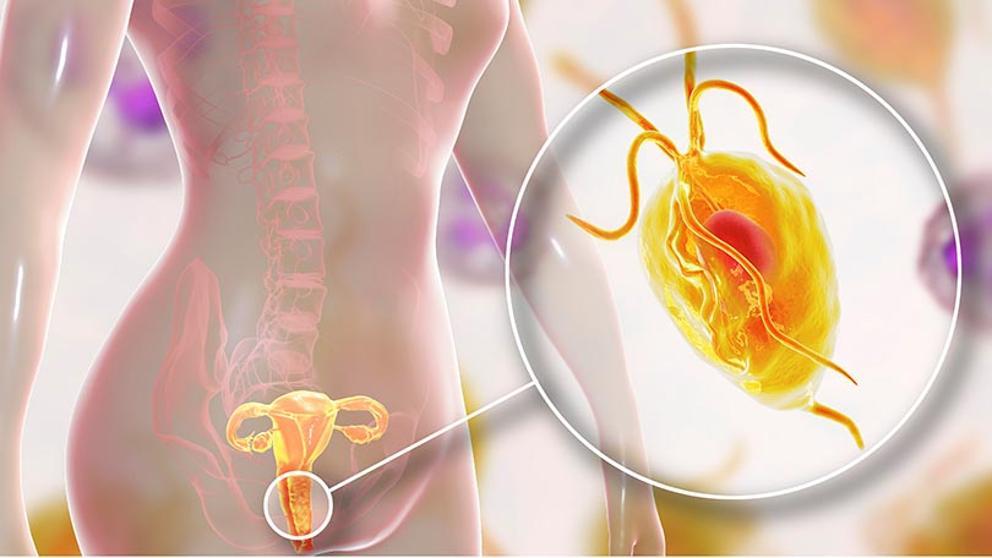 paraziti trichomonas la om