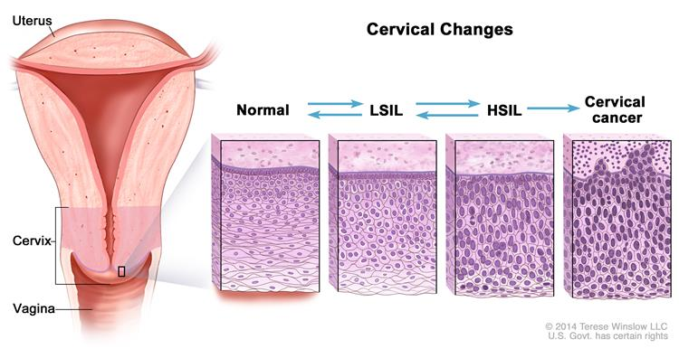 Hpv cancer and radiation, Hpv infection breast cancer