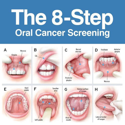 Hpv throat cancer symptoms causes - Case Report, Hpv that causes throat cancer