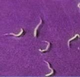 lombrices de oxiuros cancer colorectal non metastatique