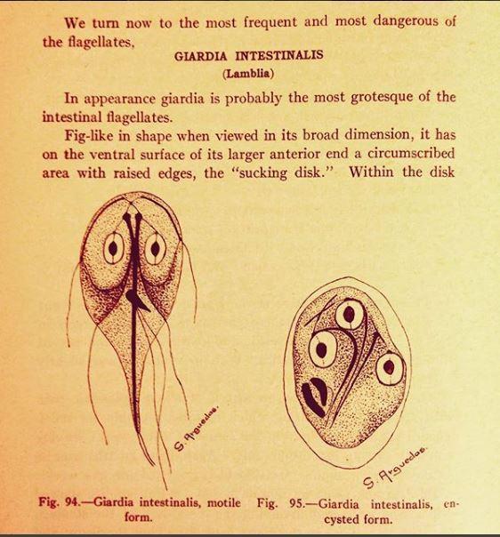Infecţia cu Giardia (giardiaza)