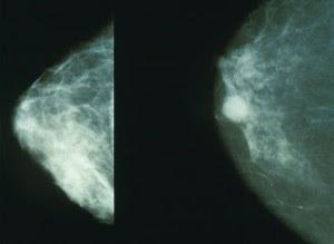 Intraductal papilloma adolescent Papiloma intraductal canceroso - Poze cu poze de fibroadenomas