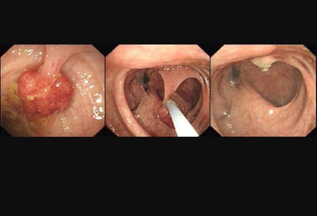 Cancerul colorectal poate fi vindecat daca este depistat precoce   csrb.ro