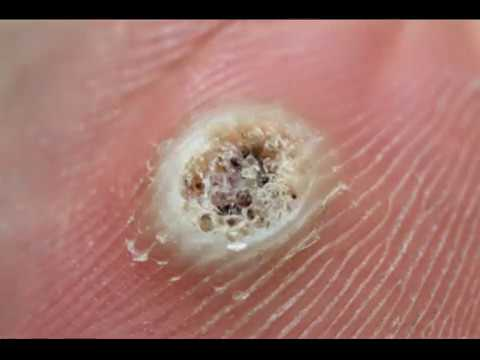 Hpv warts popping. Wart on foot black dots - A lanemie