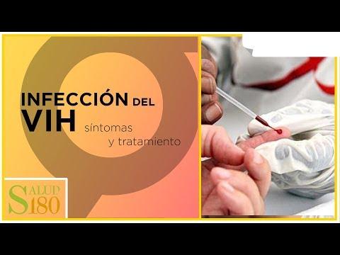 oxiuros y vih history of nasal papilloma