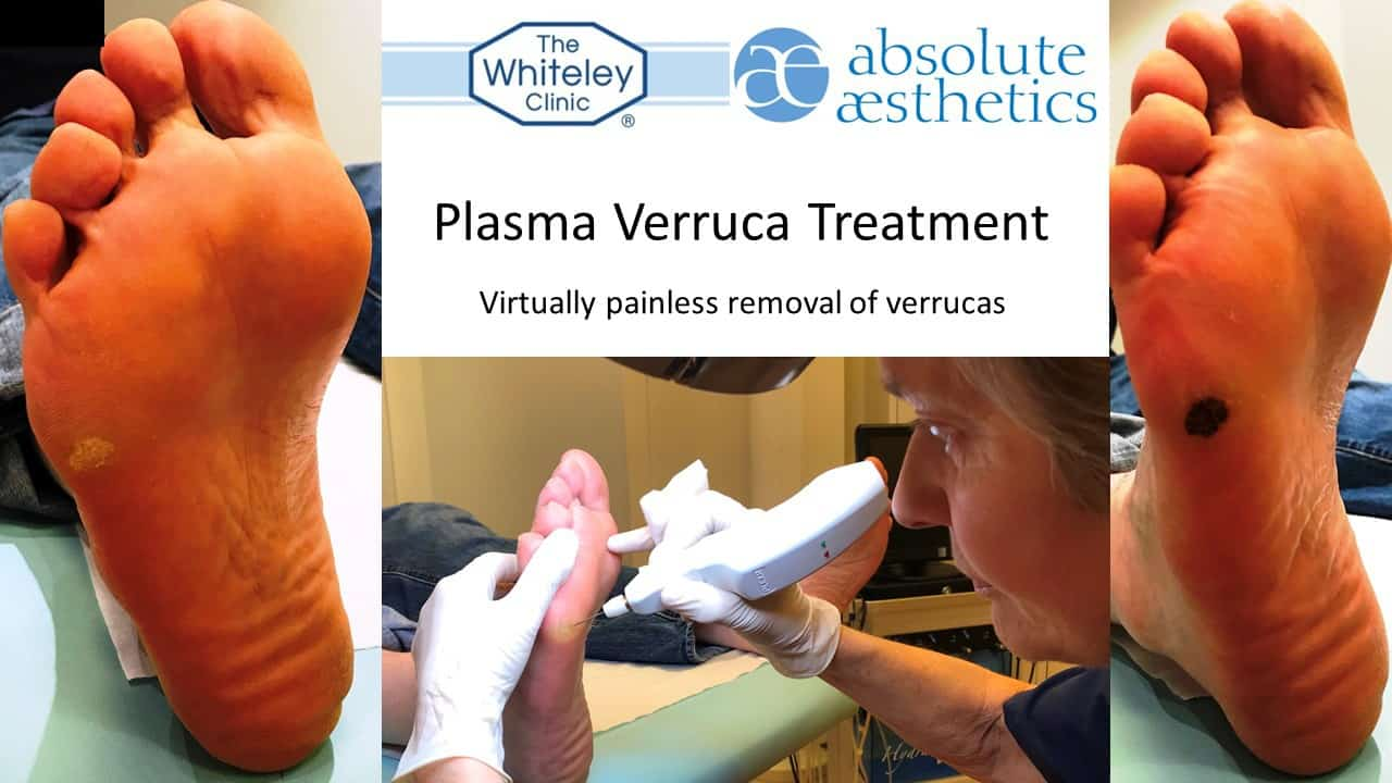 Verruca foot treatment