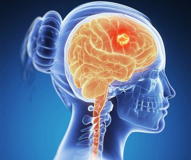 Descoperirea paraziților creierului Generalitati