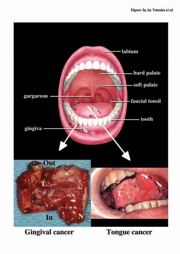 cancer endometrial stadiul 2 feluri de viermi umani