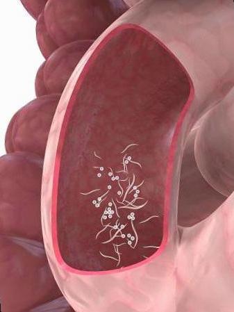Tratamiento caseros para los oxiuros. MI HIJO ARROJO GUSANOS. (OXIURIASIS) cancer hodgkin linfoma