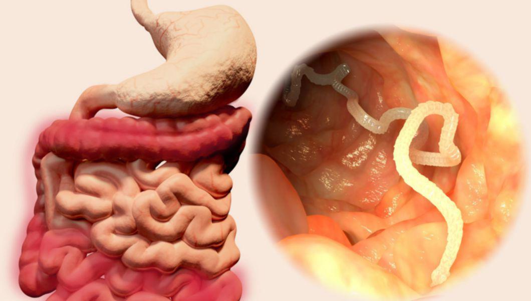 Tratamentul bucal HPF