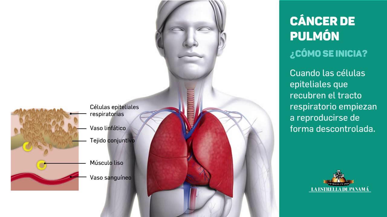 Luna noiembrie este dedicată conştientizării şi prevenirii cancerului pulmonar | csrb.ro