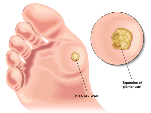 Plantar wart home remedy removal. Hpv virus at 35, Wart treatment foot