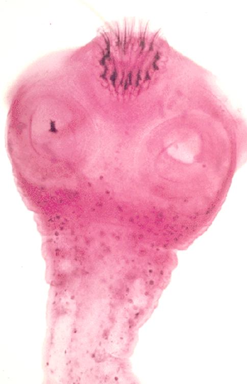 Incontinenţa urinară - Introducere - TENA Men