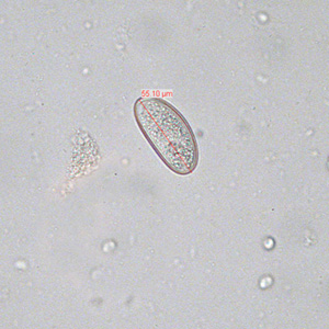 enterobius vermicularis egg size