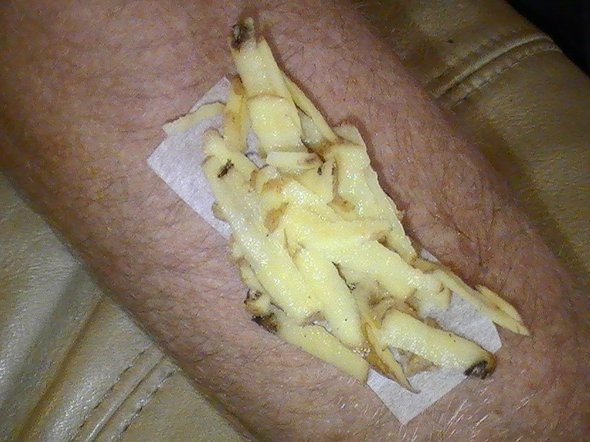 Cauze ale mancarimilor din zona vaginala, care nu au de-a face cu infectiile fungice