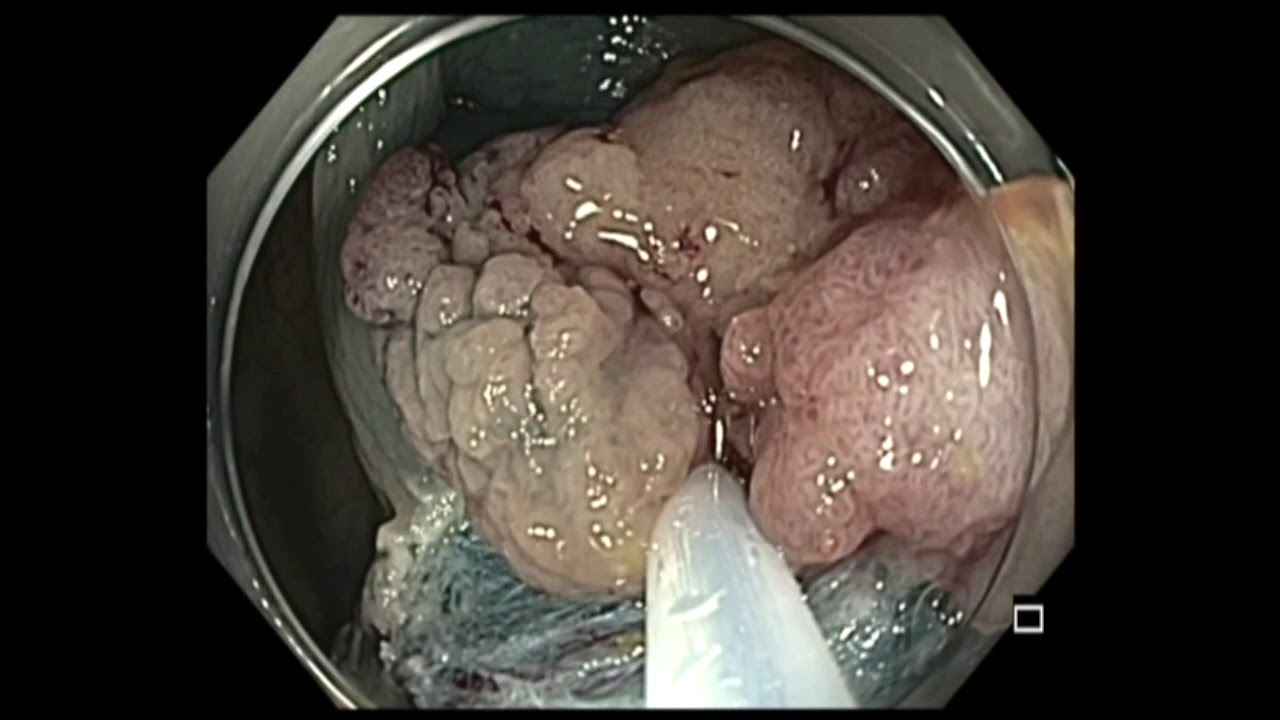 Colon cancer hepatic flexure