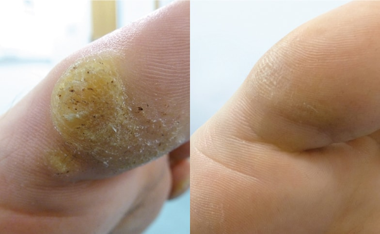 Warts on hands uk. Warts on hands treatment best, Dehydrated skin