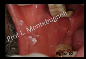 Papillomavirus bocca Verruche da papilloma virus bocca