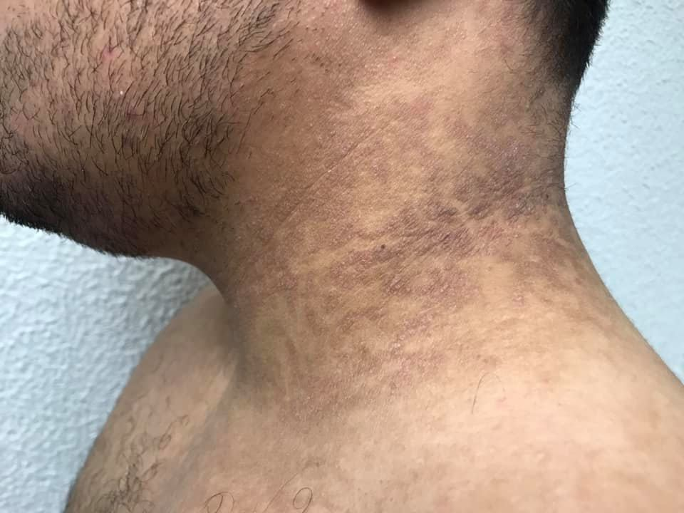 Que es papilomatosis confluente y reticulada, Picioarelor părul