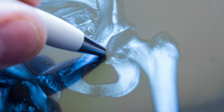 peritoneal cancer fundraiser papilomavirusuri umane risc oncogen