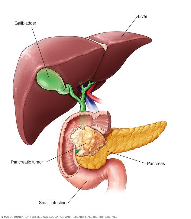 Stentare și sfincterotomie endoscopică pentru icter obstructiv cauzat de cancerul de cap pancreatic