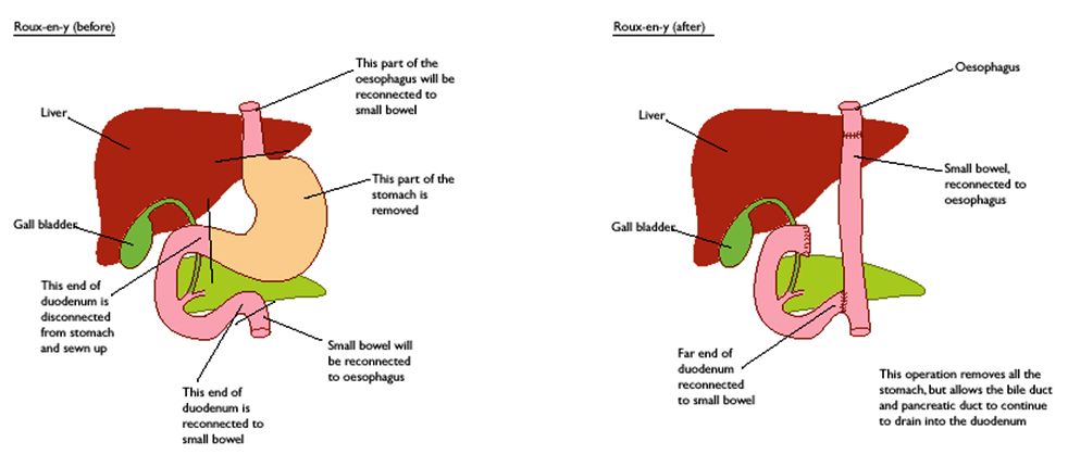 abdominal cancer removal