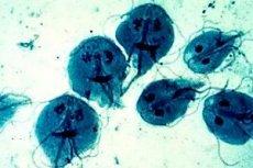 Infecţia cu giardia, la adulţi şi la copii