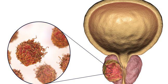 cancer de prostata simptome tratament condilomii ung
