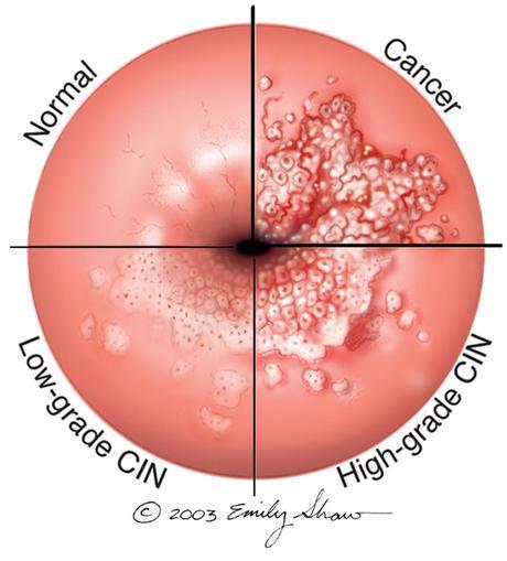 hpv bowel cancer que es cancer hormonodependiente