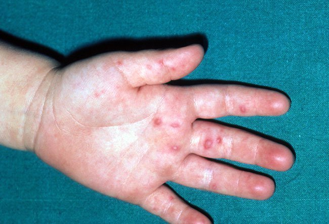 Warts on hands spreading rapidly - Laryngeal tracheal papillomatosis