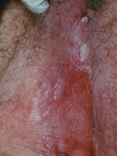 hpv genital contact