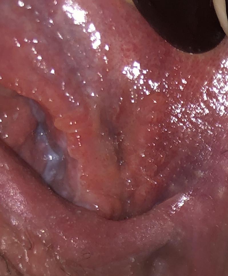 hpv or genital herpes