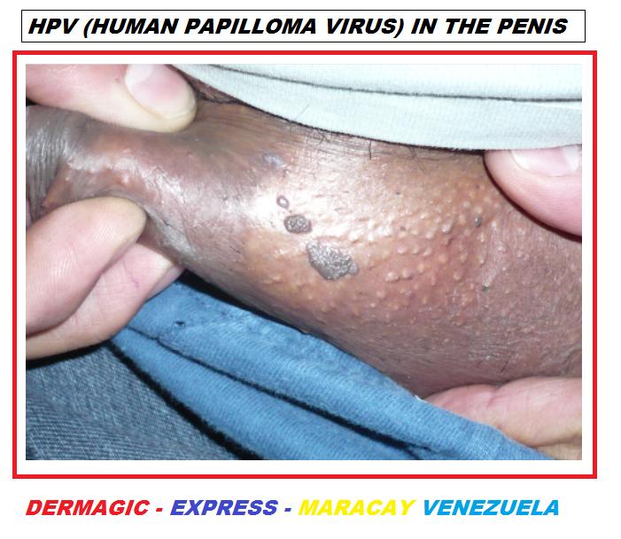 halitoză pinworms tratamente pentru paraziți în