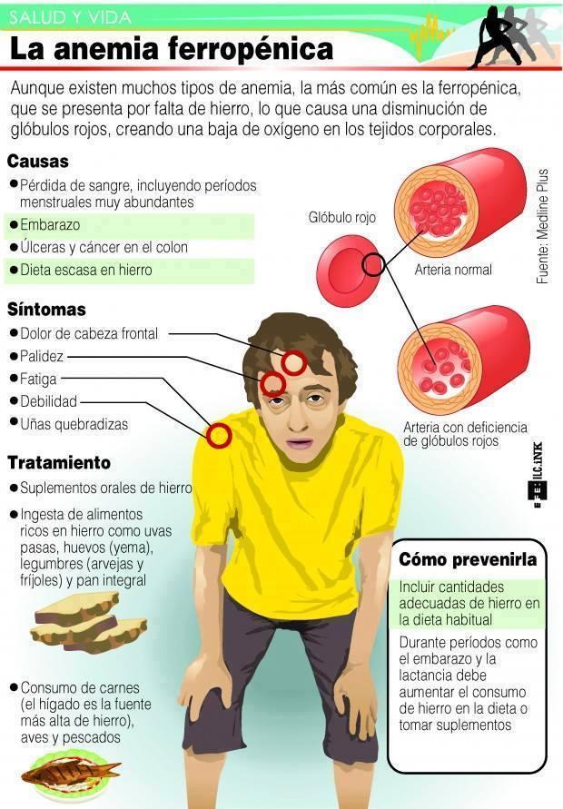 anemia y dolor de cabeza